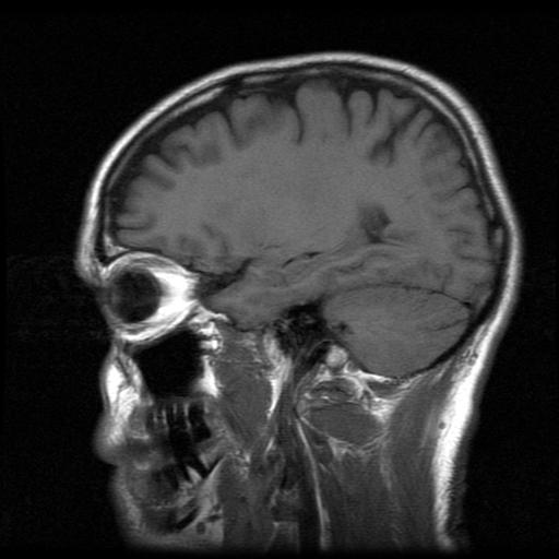 Image of mri-head scan